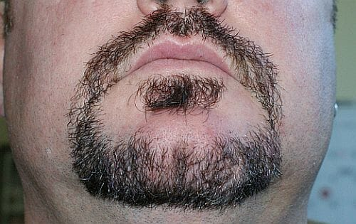 Goatee after using Harvest Moon natural beard dye