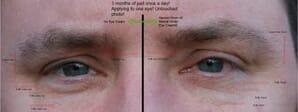 Eyes After Harvest Moon Under Eye Cream